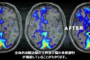 英語速読 訓練後 脳の状態